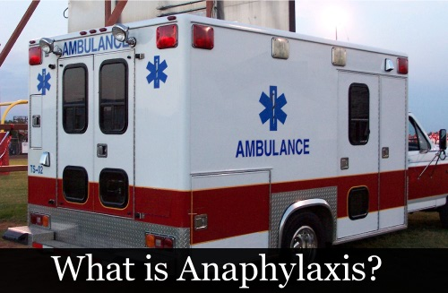 Anaphylaxis and Food Allergies